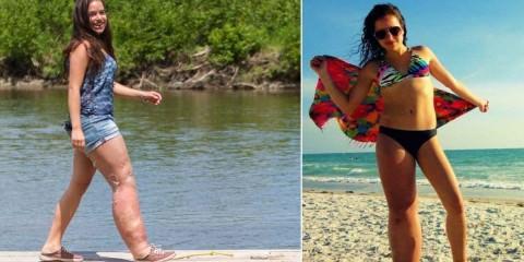 Η 19χρονη που γεννήθηκε με μία δυσμορφία στο πόδι, αλλά αυτό δεν στάθηκε εμπόδιο στην ευτυχία της