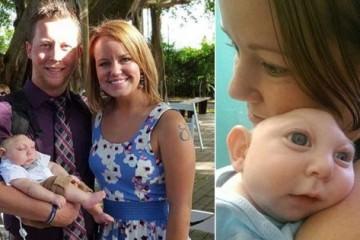 Το μωρό που γεννήθηκε χωρίς κρανίο έγινε ενός έτους!
