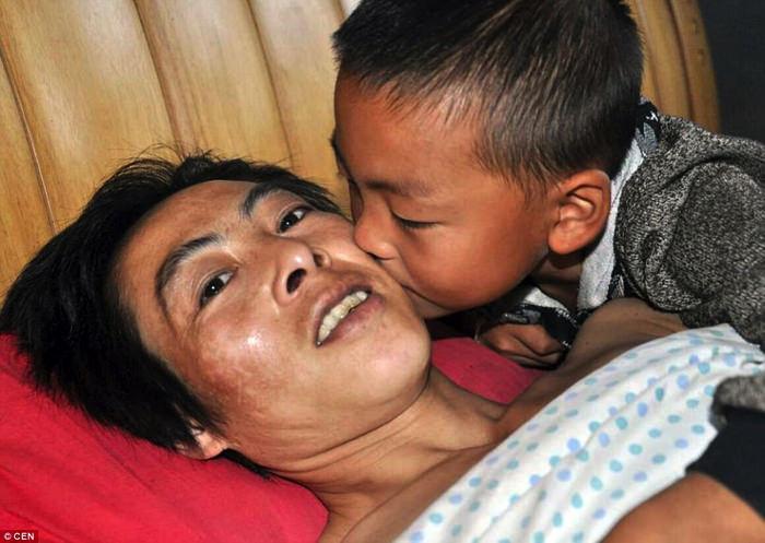 Ο 7χρονος που φροντίζει ολομόναχος τον παράλυτο πατέρα του!