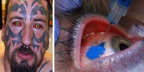 tatouaz-matiwn (500 x 303)