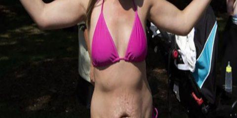 Κορόιδεψαν μια μαμά επειδή φόρεσε μπικίνι στην παραλία