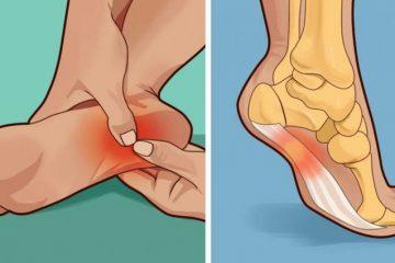 Πονάει το πέλμα σας το πρωί ή όταν στέκεστε